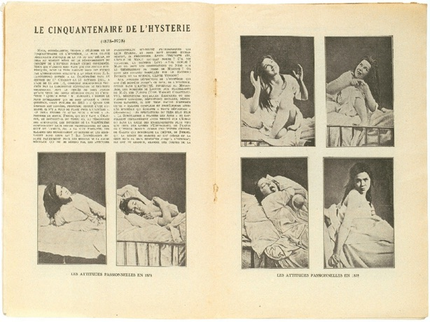 Link to Automatisme Ambulatoire: Hysteria, Imitation, Performance
