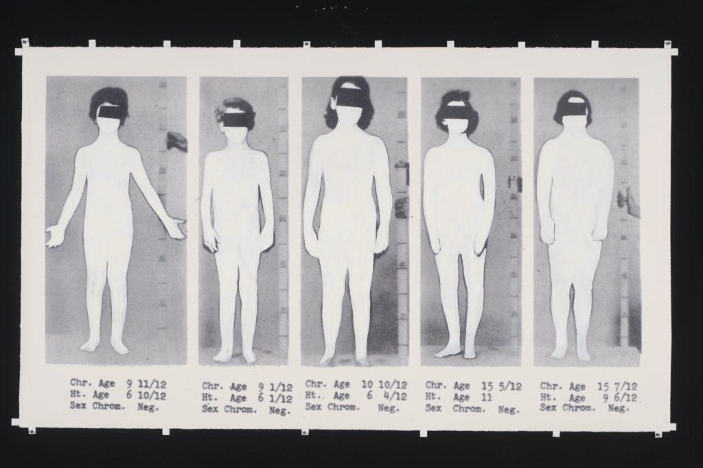 "Sunaura Taylor, Intersex, 2010, Oil paint on print on paper, 72"" x 42"""