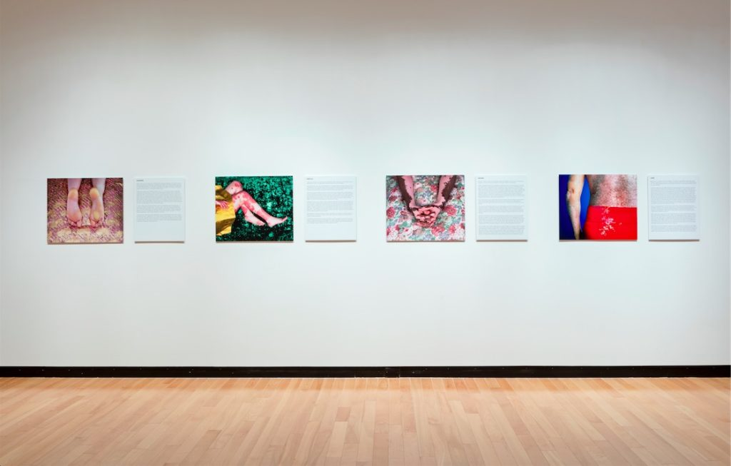 Alexa Wright, Skin, 2000, Four C-type prints, 50 x 60 cm each with text panels
